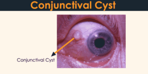 Conjunctival Cyst